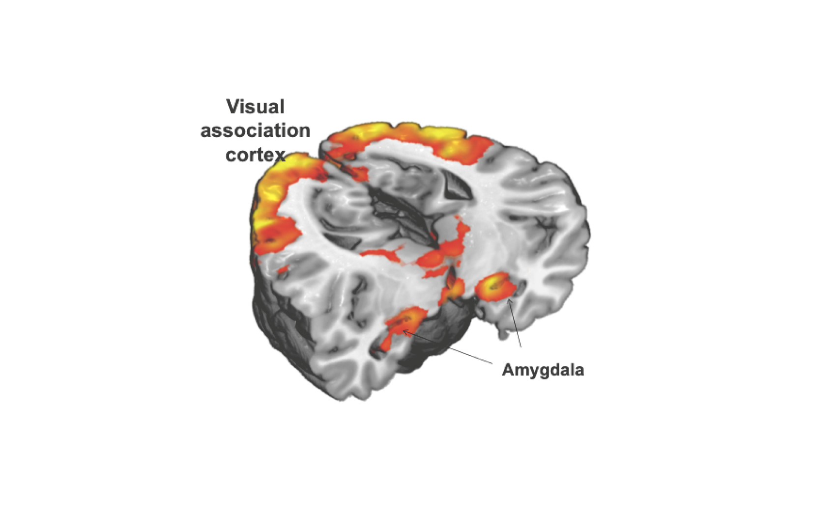 Amygdala and visual association cortex activation provoked by viewing emotionally evocative images in an fMRI BOLD paradigm