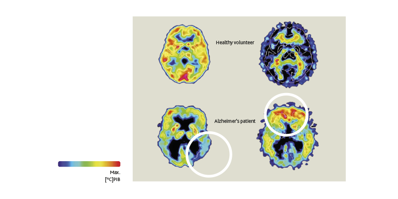 Buildup of beta-amyloid proteins tracks the evolution of Alzheimer's disease