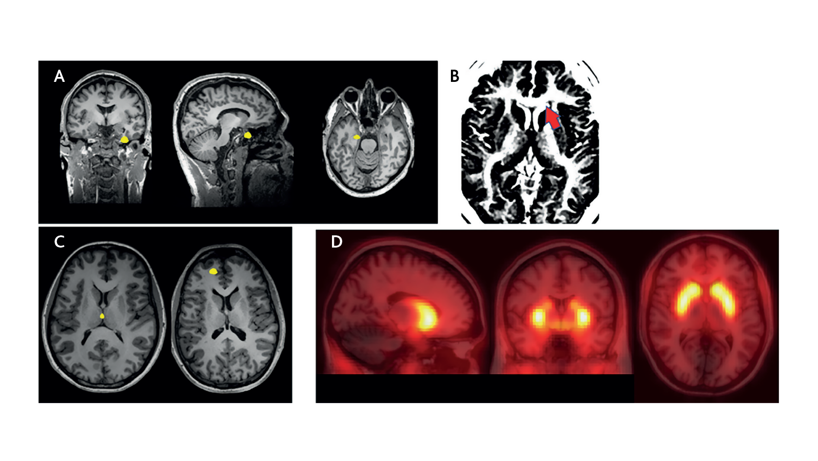 Neuroimaging differences between patients with prodromal symptoms who do and do not later develop psychosis