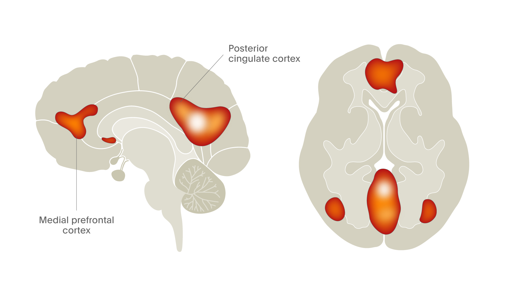 fMRI reveals the presence of the default mode network in living human brain.